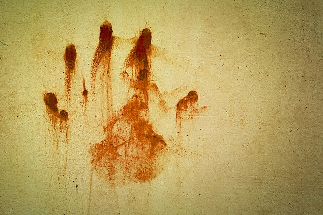 hand bloodstain